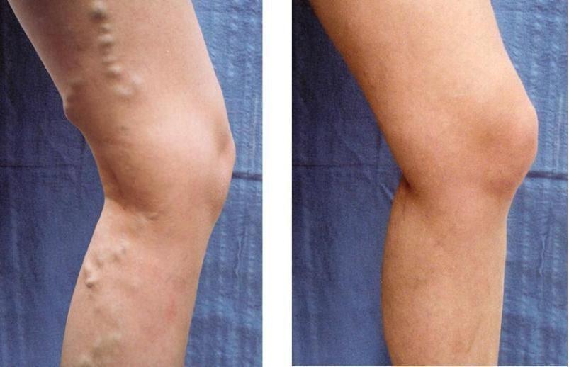 Tratamentul eficient al varicelor pe picioare cu remedii populare - Tromboflebita - April
